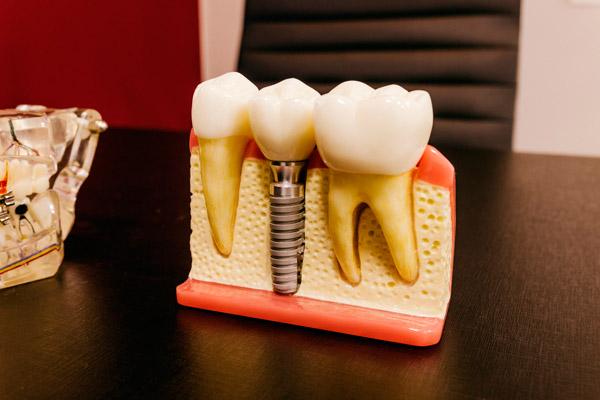 Implantación implantes de carga inmediata